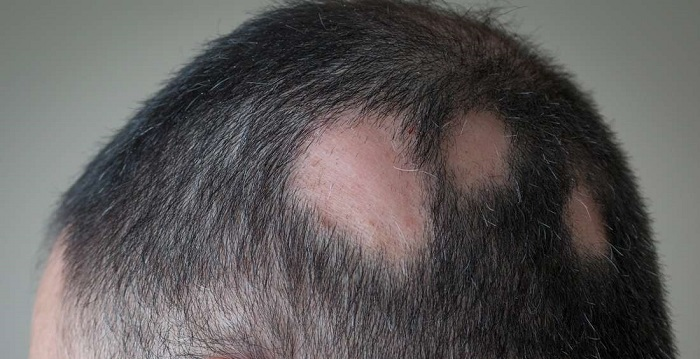 alopecijos hipertenzija)