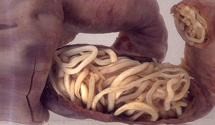 crevni paraziti kod dece simptomi helmintox profilaksei